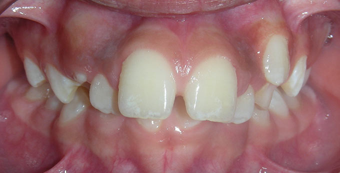 Children teeth before perth orthodontic treatment for severe dental crowding and misalignment